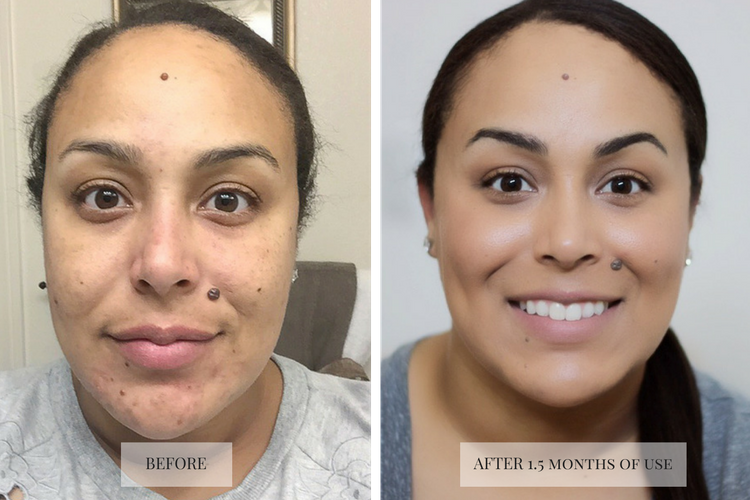 silkn-revit-microdermabrasion-beforeafter-makeup-life-and-love