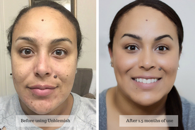 Rodan Fields Unblemish Before Aftermakeup Life And Love